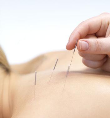 psoriasis acupunctuur